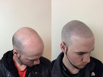 頭皮のタトゥー 髪の毛